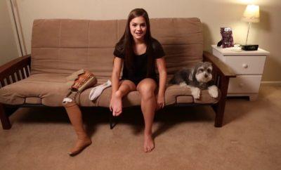 9 ročná Gabi mala rakovinu a podstúpila amputáciu nohy, no ani tak sa baletu nevzdala!